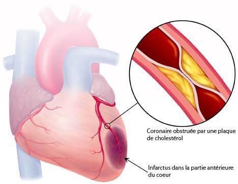 La Crise cardiaque - Cardiologie du CHI de Montreuil -93